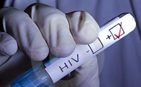 hiv-pozitiv