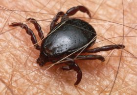 A close up of a tick feeding on a human arm. South Africa.
